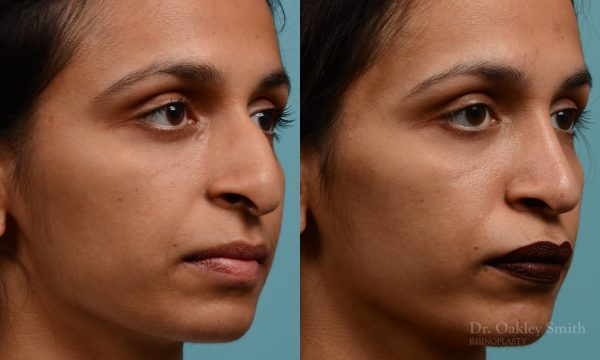 female hook nose reduction rhinoplasty