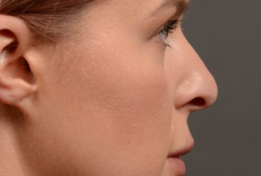 Rhinoplasty Before and After Case 361
