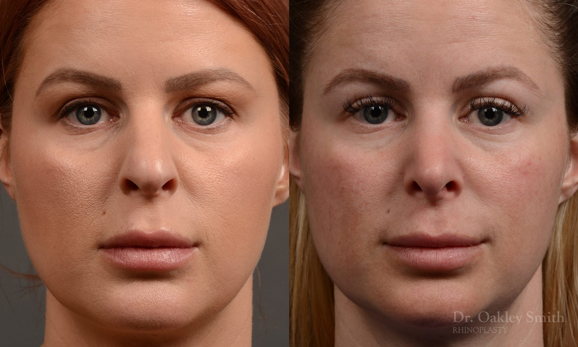 Rhinoplasty - Rhinoplasty Before and After Case 361