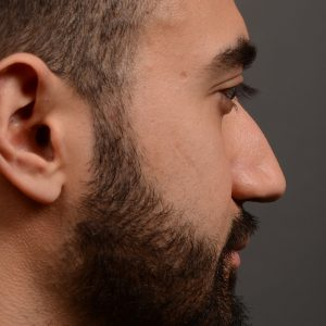 male hump reduction rhinoplasty