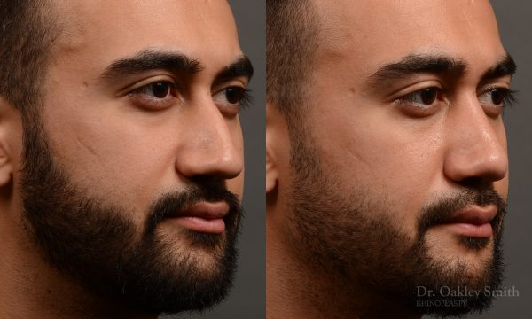 male hump reduction rhinoplasty