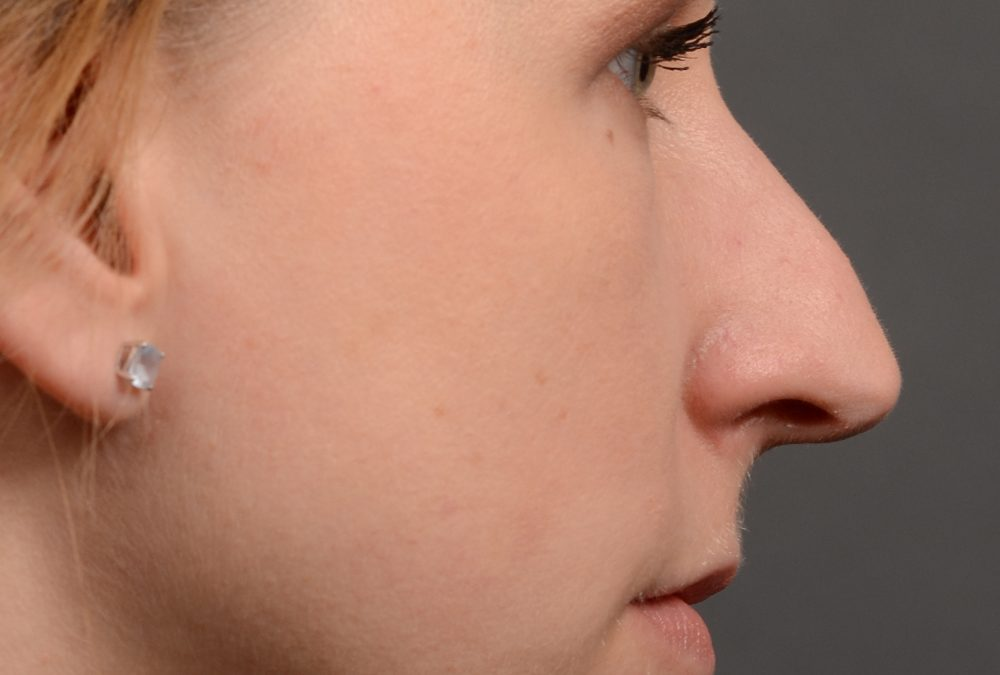 Rhinoplasty Before and After Case 363