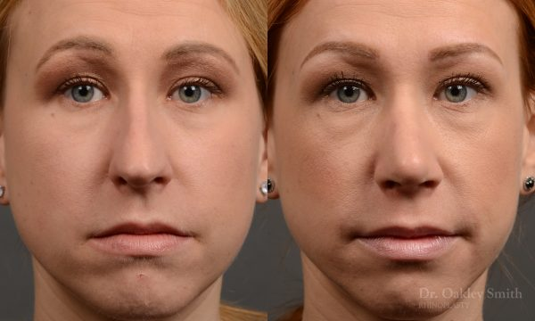 basal view rhinoplasty nose job