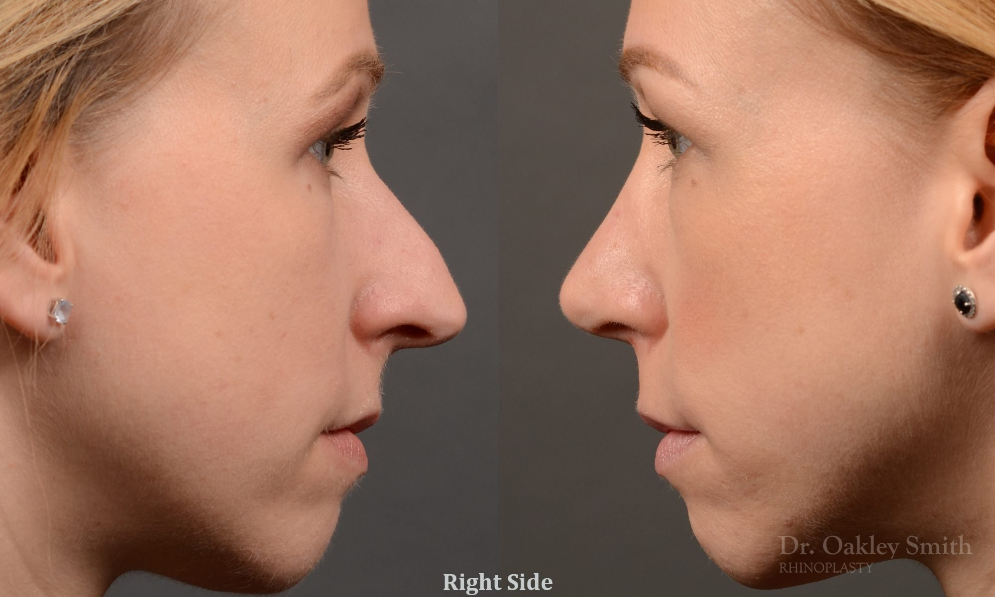 basal view rhinoplasty nose job right profile