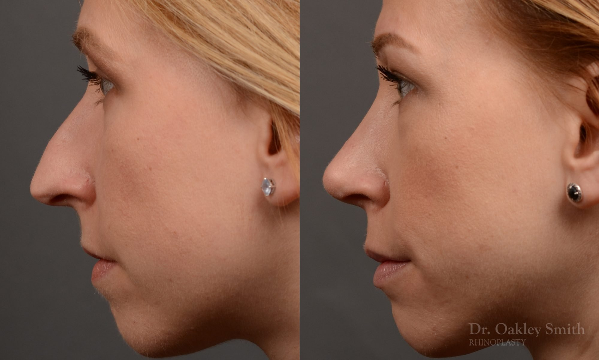 left profile view rhinoplasty nose job