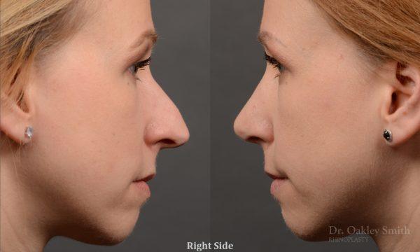 rhino hump big nose