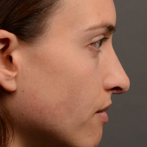 female nose rhinoplasty reduction
