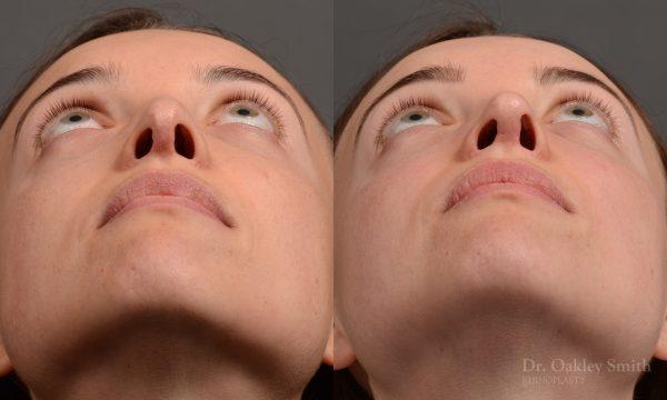 female nose rhinoplasty reduction