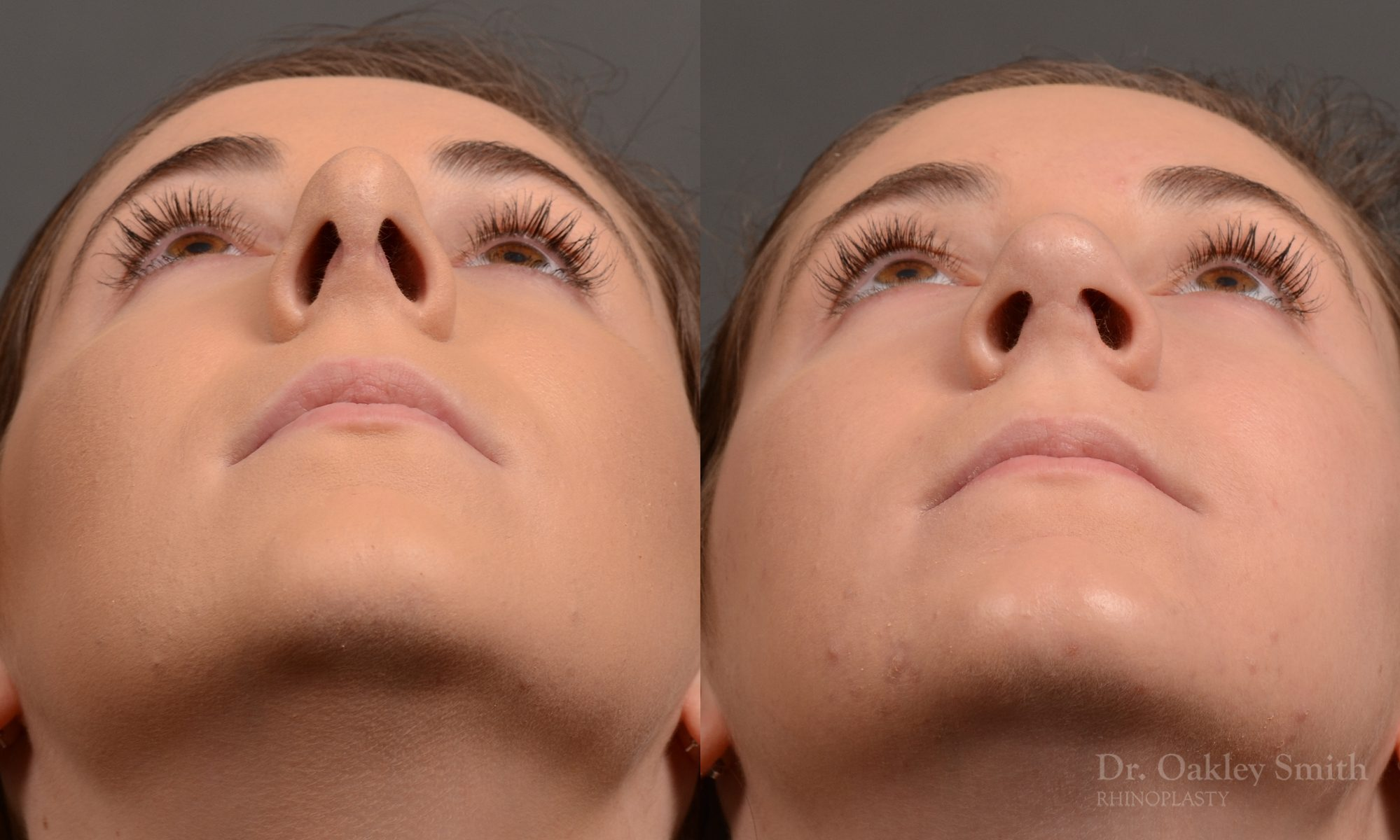 Rhinoplasty - Rhinoplasty Before and After Case 366