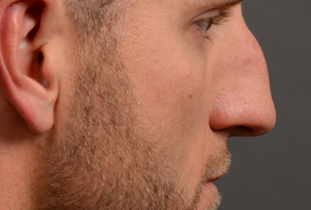 Rhinoplasty Before and After Case 367