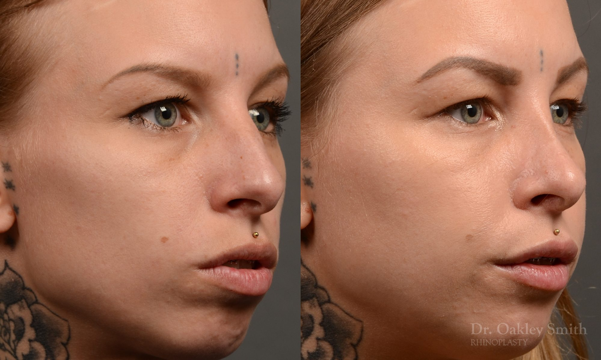 right third view rhinoplasty nose job