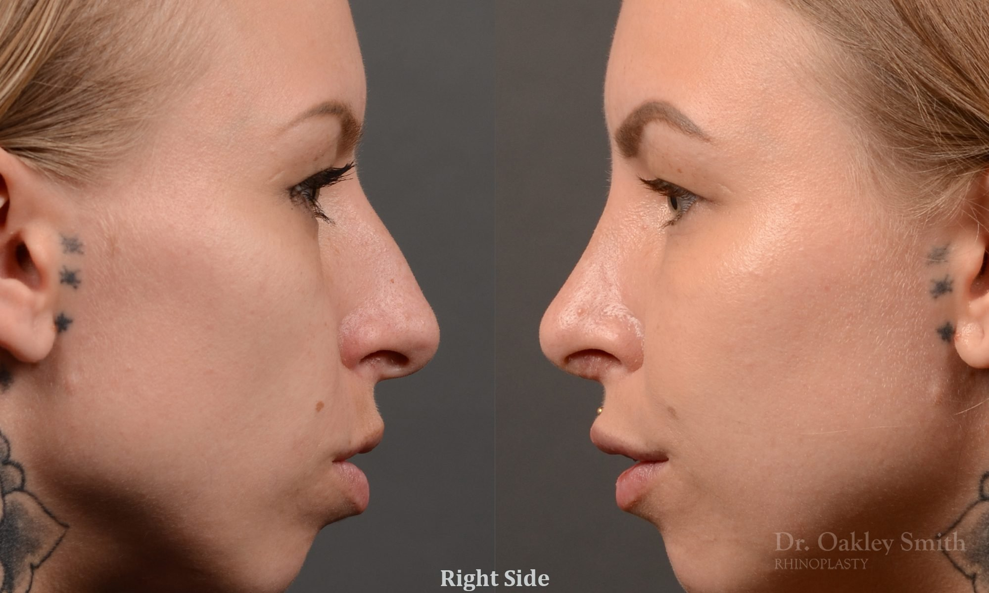 right profile side view rhinoplasty nose job