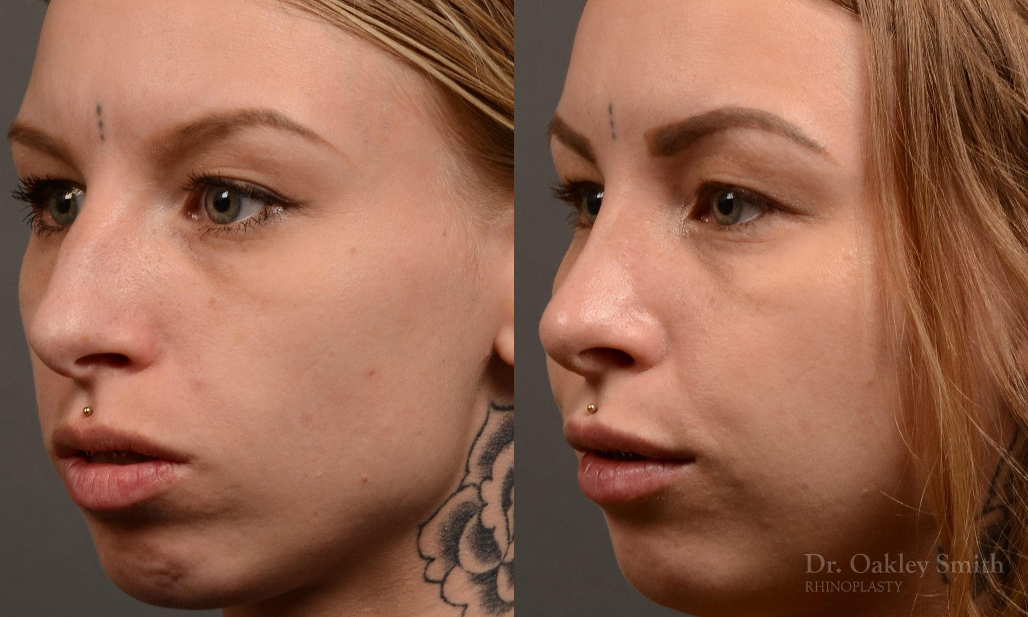 left third view rhinoplasty nose job