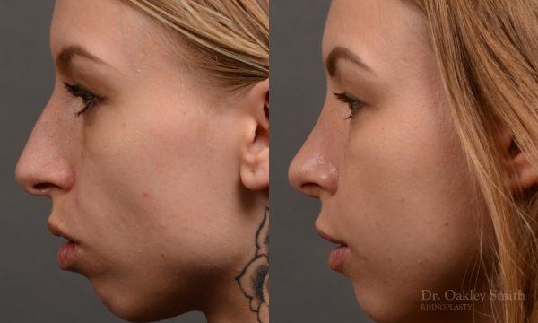left profile side view rhinoplasty nose job