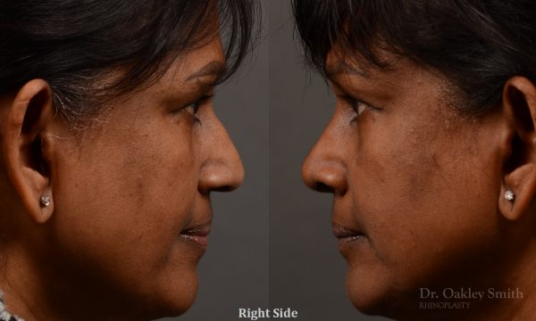 Nothing demonstrates the skillful craftsmanship that Dr. Oakley Smith accomplishes during his surgeries than a collection of before and after case studies. As one of a hand full of surgeons in North America who limits his practice to only Rhinoplasty surgery, it is obvious that he has mastered his art. There is no question why he is one of the busiest cosmetic nose job surgeons in the country.