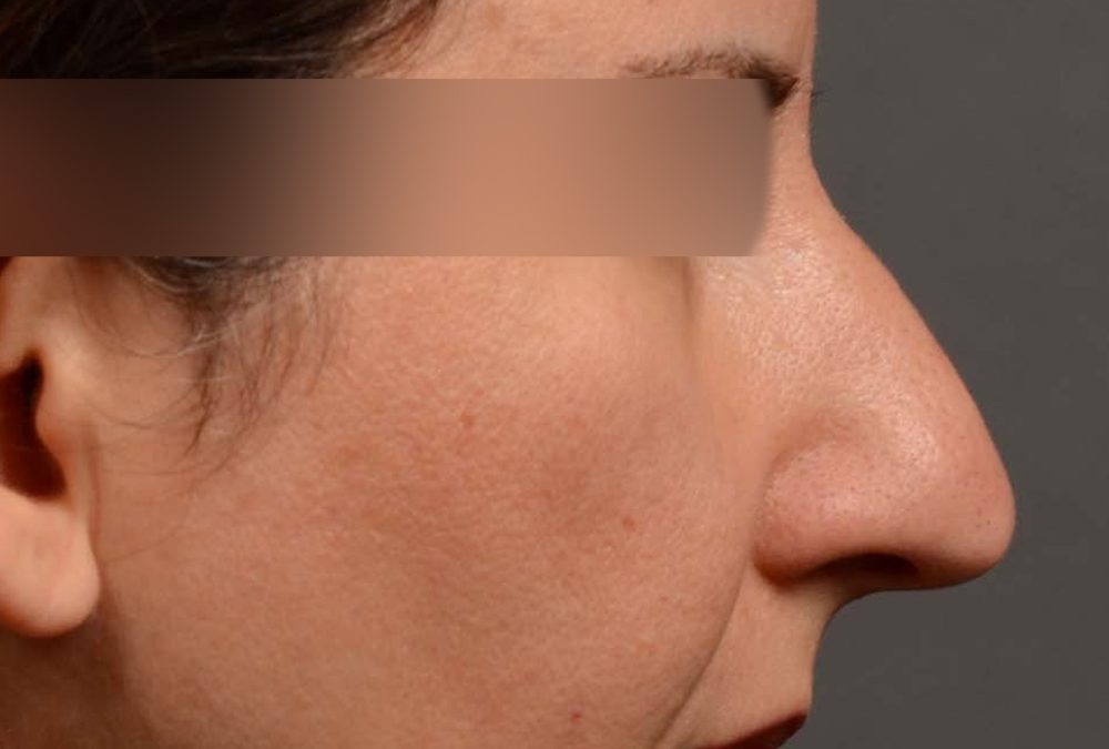 Rhinoplasty Before and After Case 372