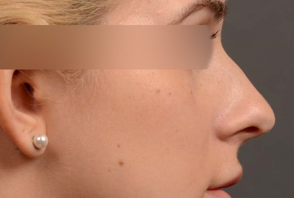 Rhinoplasty Before and After Case 374