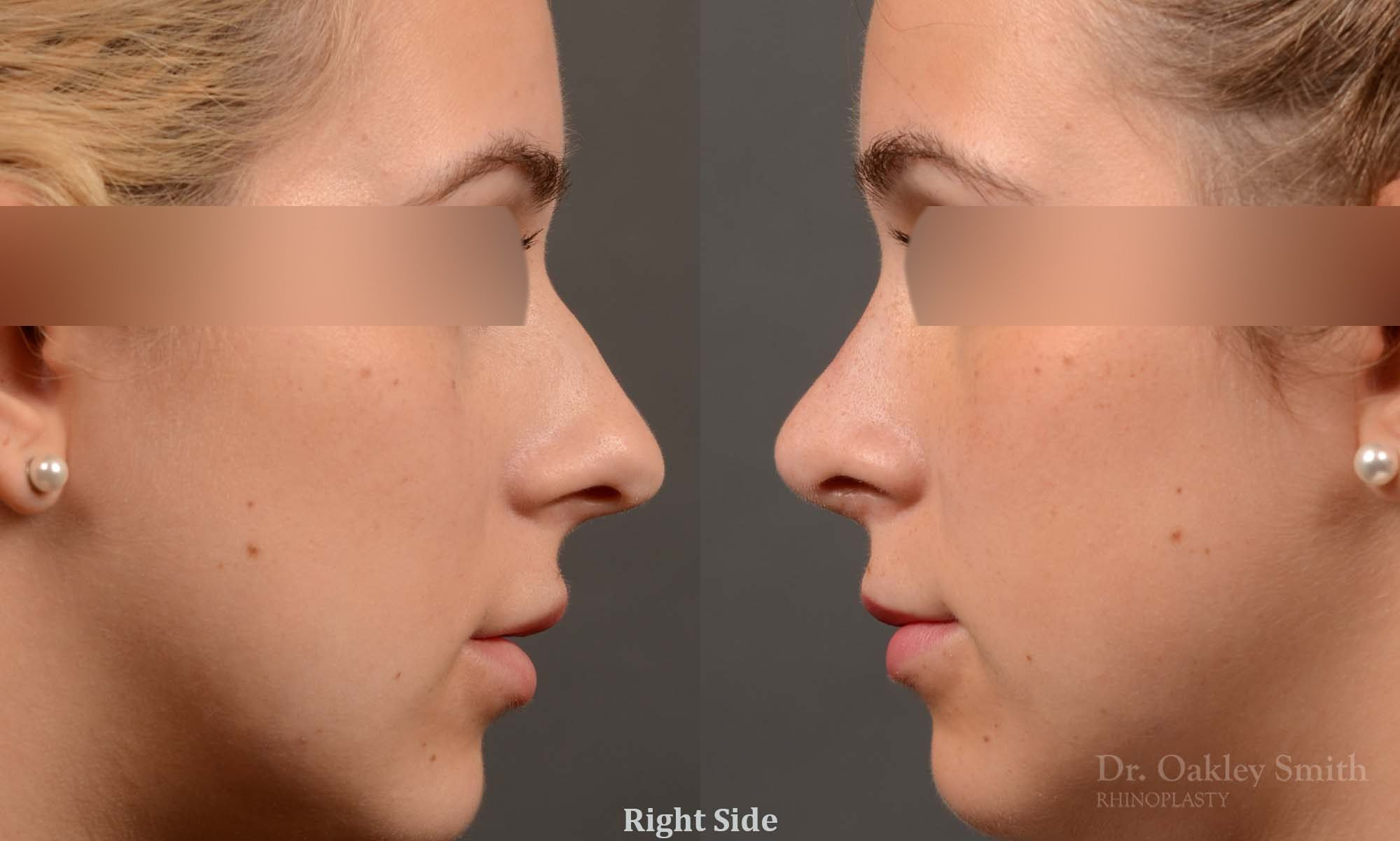 374 rhinoplasty, this woman had revision rhinoplasty to reduce the overall size of her nose.