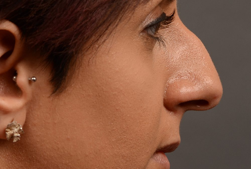 Rhinoplasty Before and After Case 376
