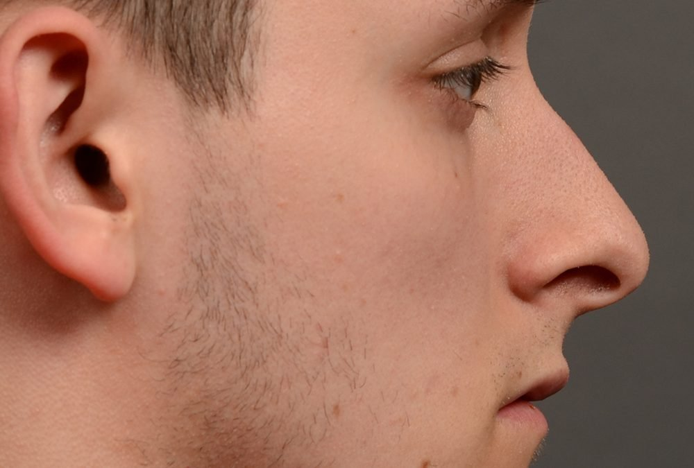 Rhinoplasty Before and After Case 377
