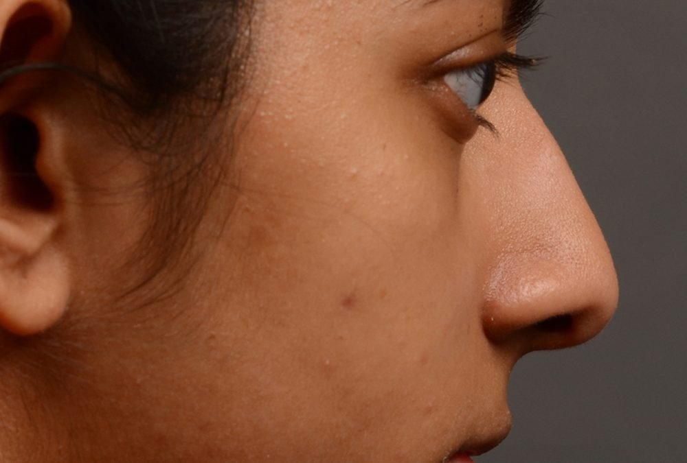 Rhinoplasty Before and After Case 383
