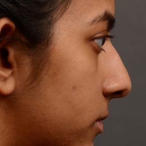 Rhinoplasty - Rhinoplasty Before and After Case 383