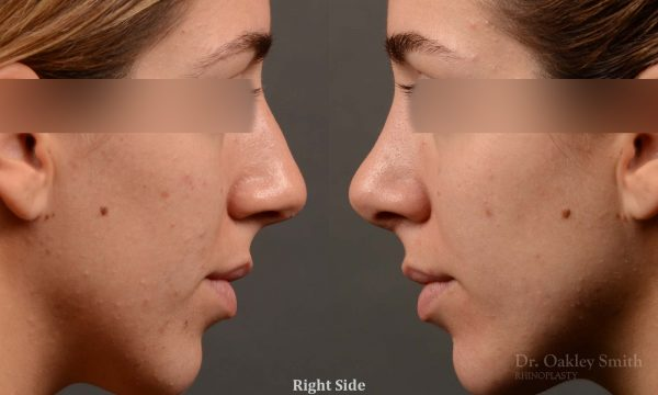 385.1 - Expert Rhinoplasty nose job surgery to reduce the bump on this womans nose.