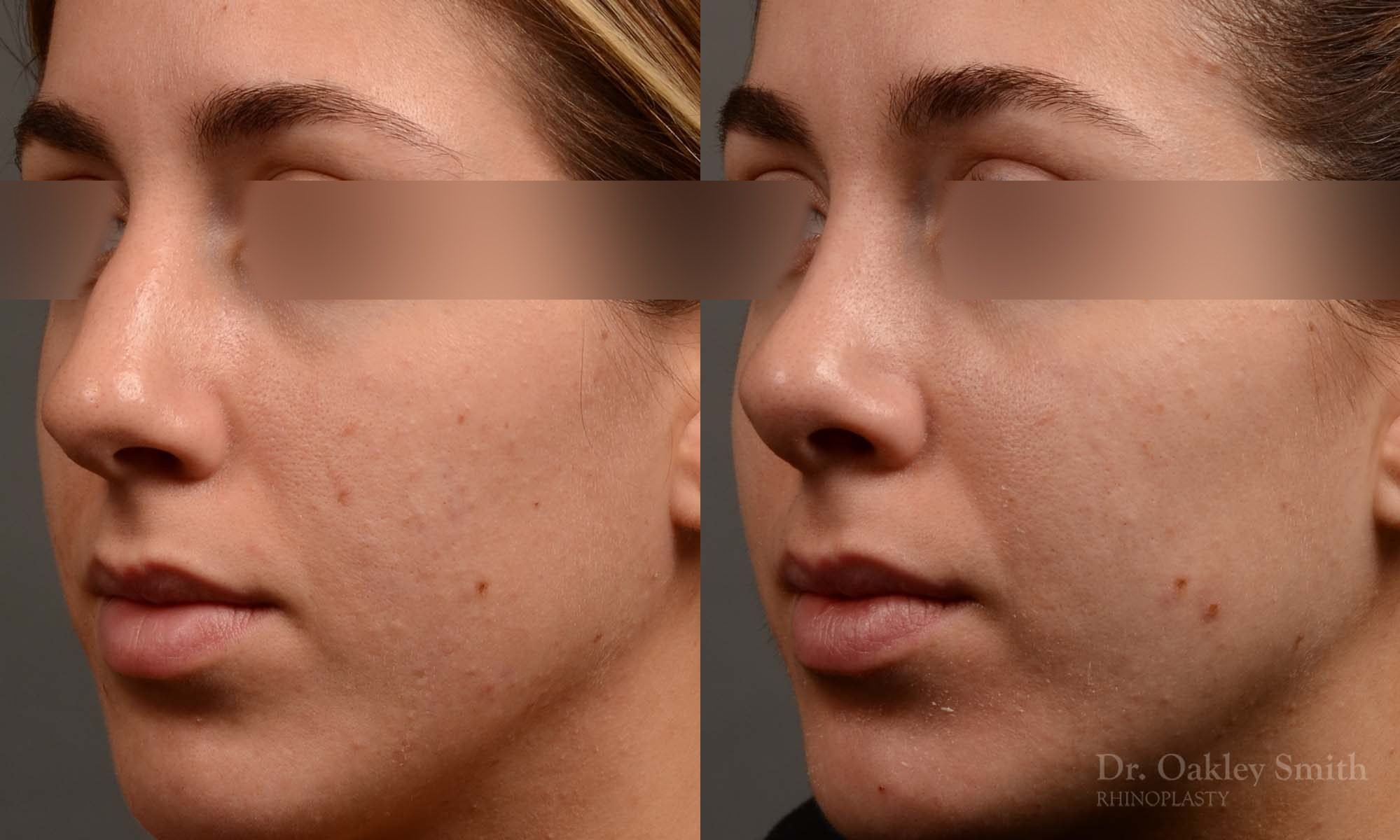 385 - Expert Rhinoplasty nose job surgery to reduce the size of this womans nose.