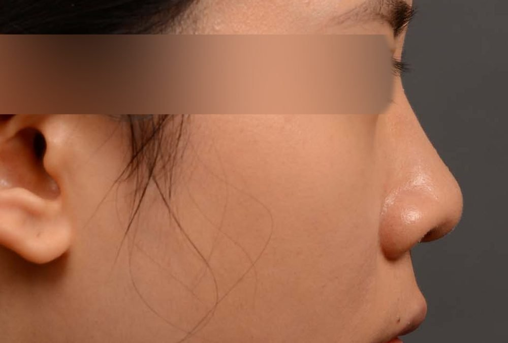 Rhinoplasty Before and After Case 386