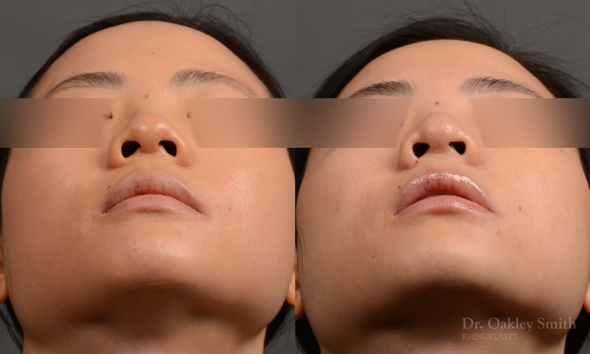 Rhinoplasty - Rhinoplasty Before and After Case 386