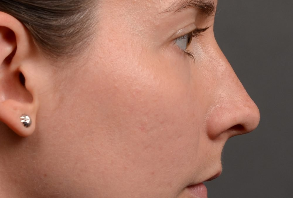 Rhinoplasty Before and After Case 387