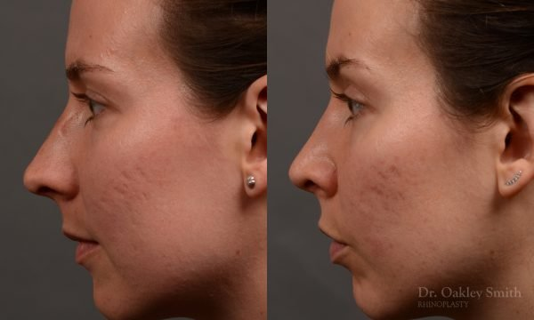 rhinoplasty Nothing demonstrates the skillful craftsmanship that Dr. Oakley Smith accomplishes during his surgeries than a collection of before and after case studies. As one of a hand full of surgeons in North America who limits his practice to only Rhinoplasty surgery, it is obvious that he has mastered his art. There is no question why he is one of the busiest cosmetic nose job surgeons in the country.