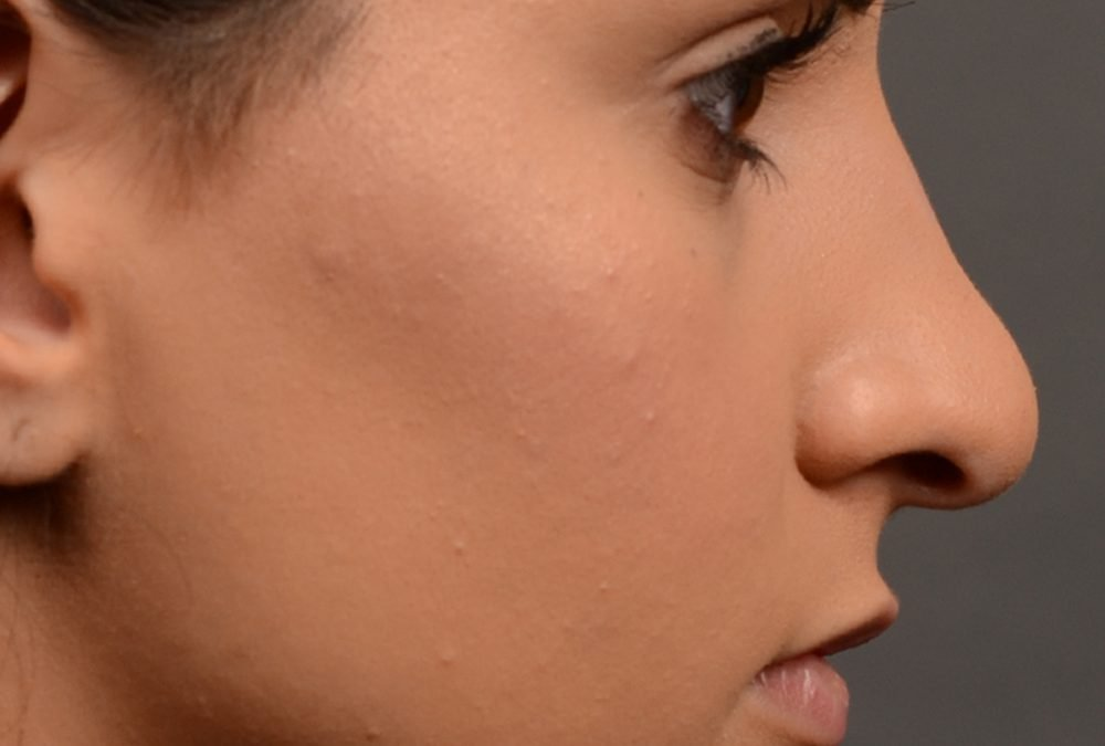 Rhinoplasty Before and After – Case 390