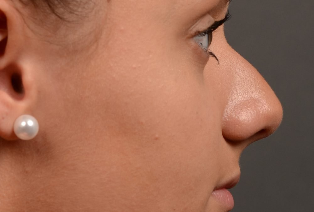 Rhinoplasty Before and After Case 392