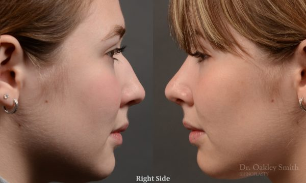 Expert Rhinoplasty nose job surgery to reduce the size of this womans nose.