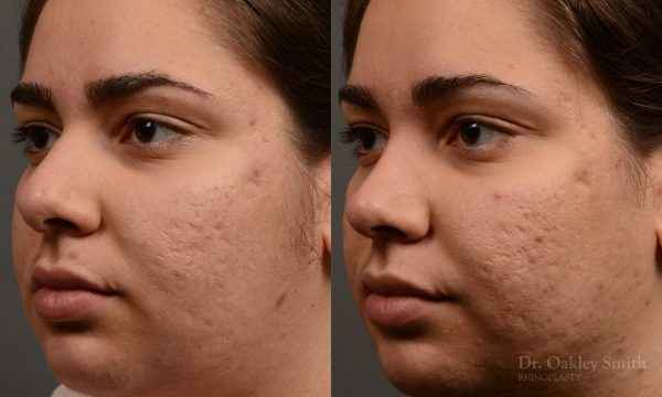 396 - Expert Rhinoplasty nose job surgery to reduce the size of this womans nose.