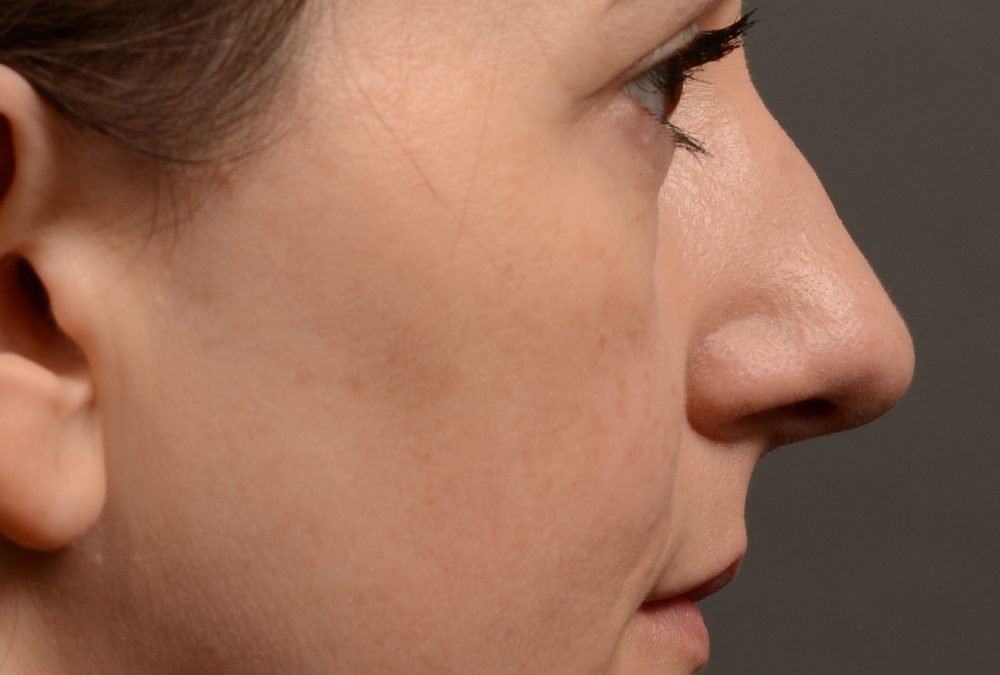 397 – Rhinoplasty Before and After Case 397