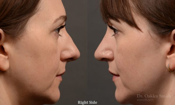397 - Expert Rhinoplasty nose job surgery to reduce the size of this womans nose.
