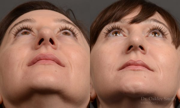 Rhinoplasty - 397 – Rhinoplasty Before and After Case 397