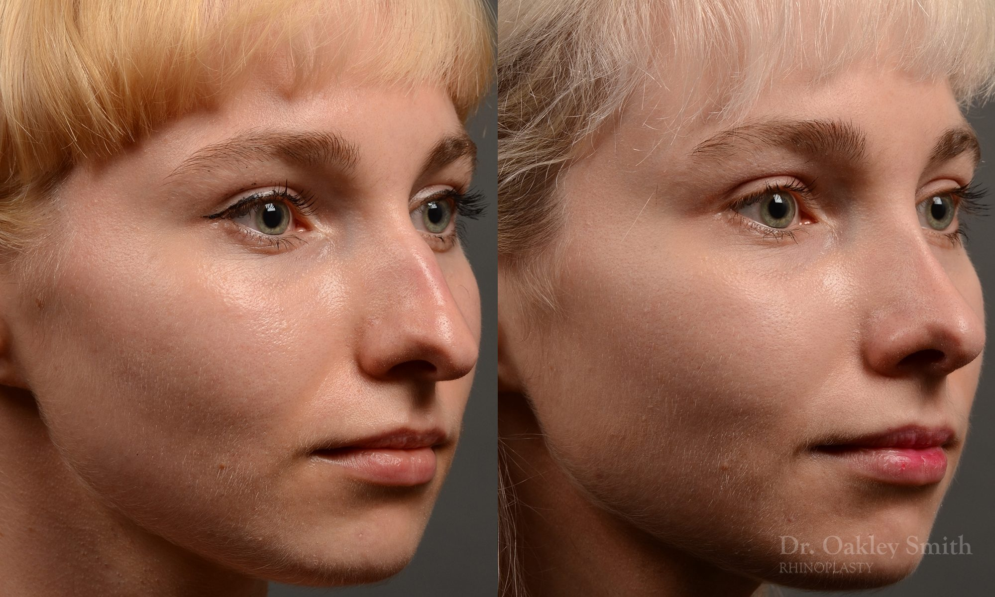 398 - Expert Rhinoplasty nose job surgery to reduce the size of this womans nose.