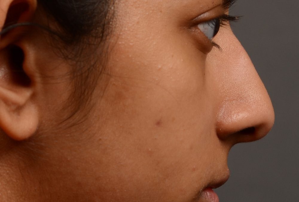 Rhinoplasty before and after case 399 – Dr Oakley Smith Toronto