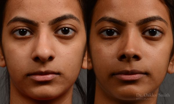 399 - Expert Rhinoplasty nose job surgery to reduce the size of this womans nose.