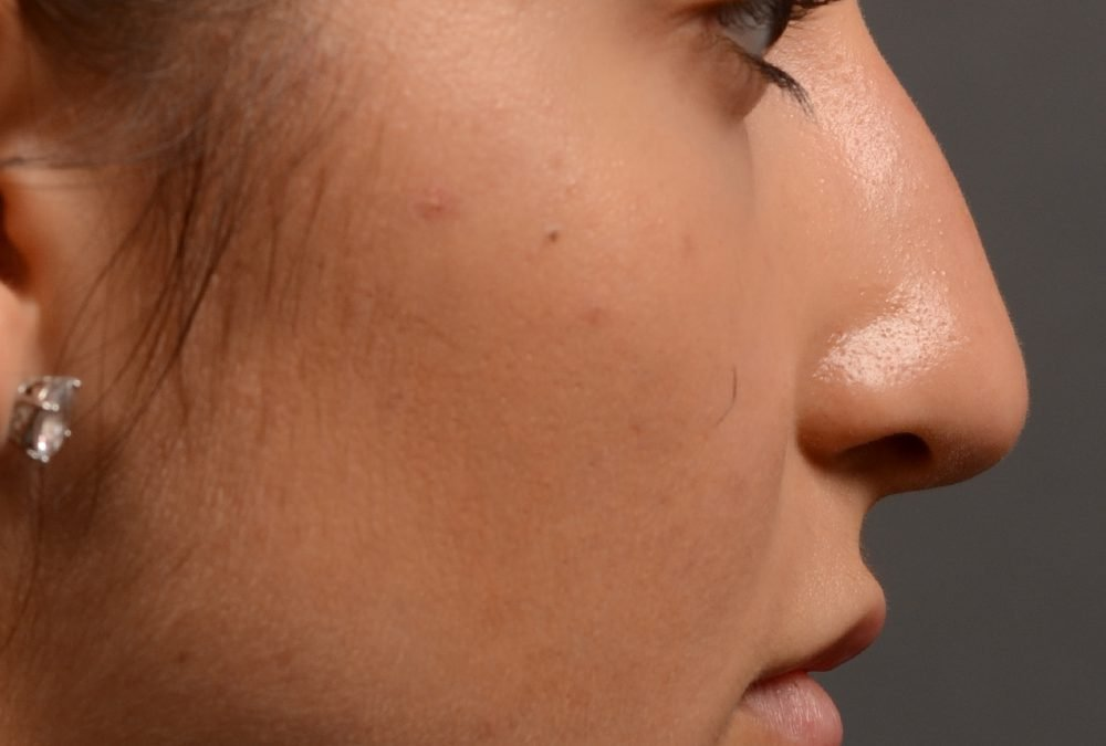 400 – Rhinoplasty Expert Toronto Before and After Case 400