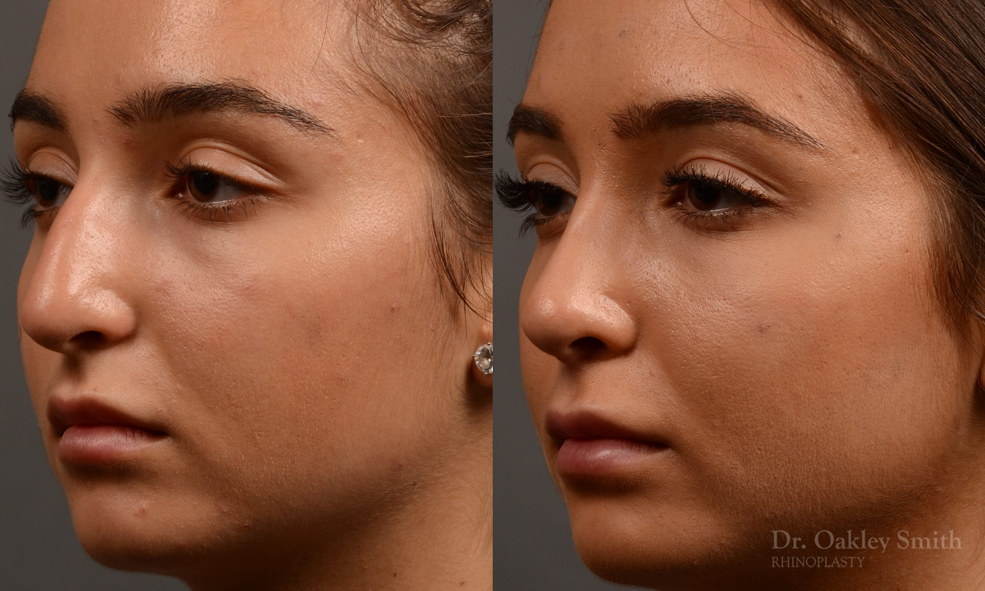 400 - Expert Rhinoplasty nose job surgery to reduce the size of this womans nose.