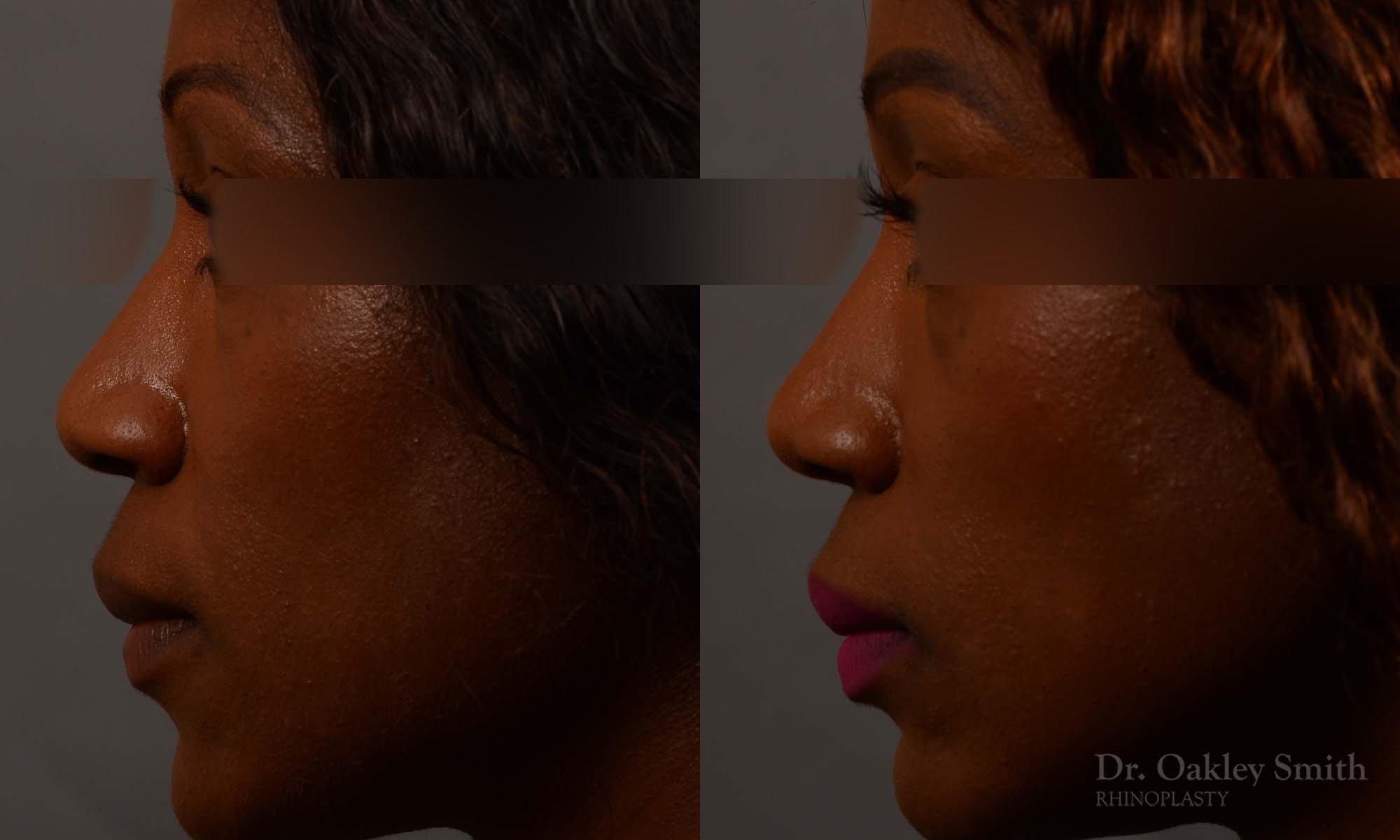 402 rhinoplasty nose job, wide base, dr. oakley smith, toronto