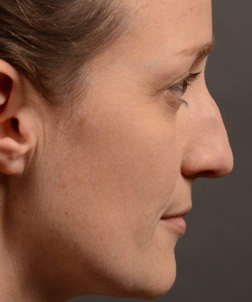404 hump reduction rhinoplasty - dr. Oakley Smith - top toronto nose job surgeon