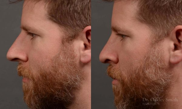 379 - Expert toronto rhinoplasty surgeon - dr. oakley smith - hump reduction, overall size reduction