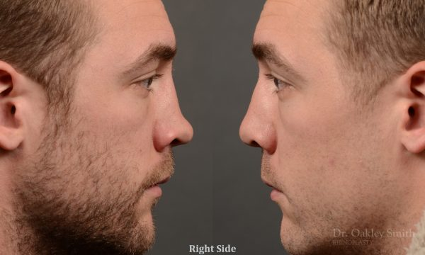 388 - expert toronto rhinoplasty surgery to remove the bulbous tip of this mans nose