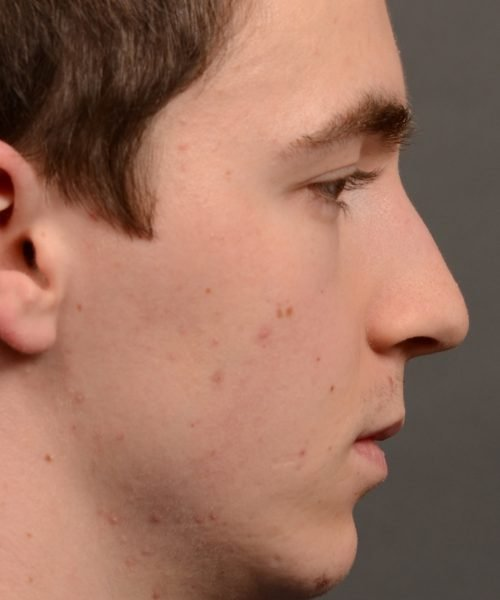 403 hump reduction rhinoplasty - dr. Oakley Smith - top toronto nose job surgeon