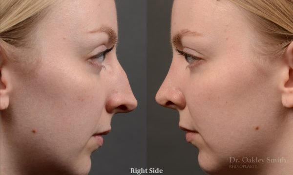 406 - Expert Rhinoplasty nose job surgery to reduce the bump on this womans nose.
